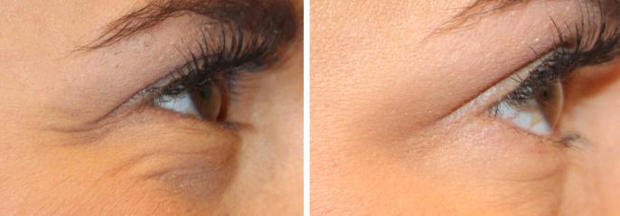 Resultados tras Botox