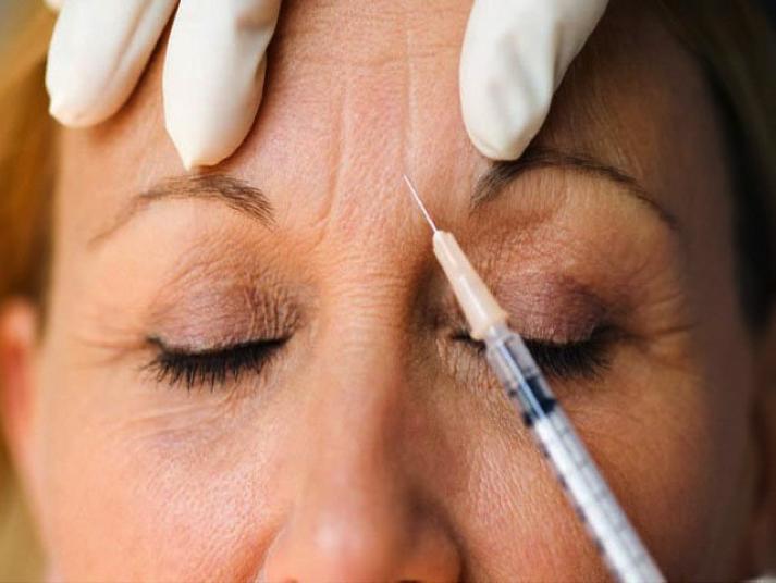 Tratamiento de las arrugas con BOTOX