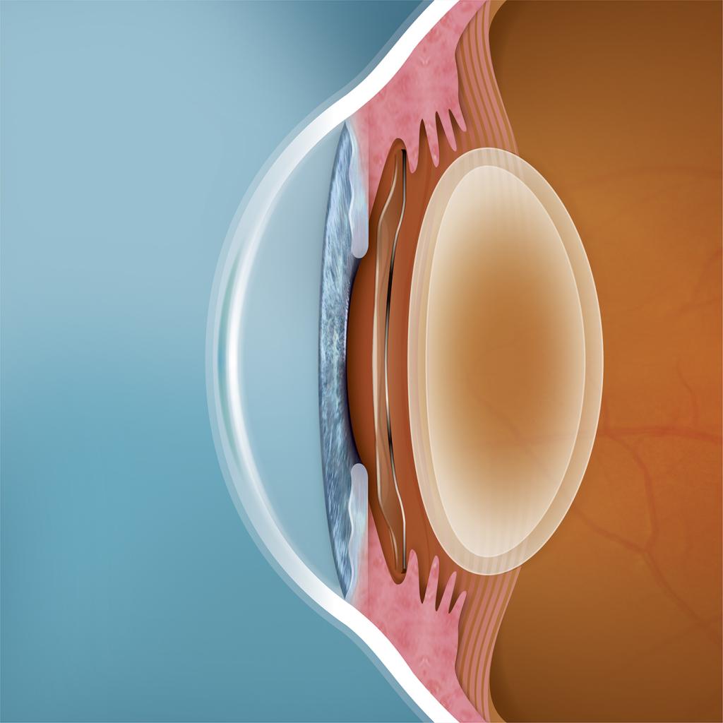 ICL intraocular