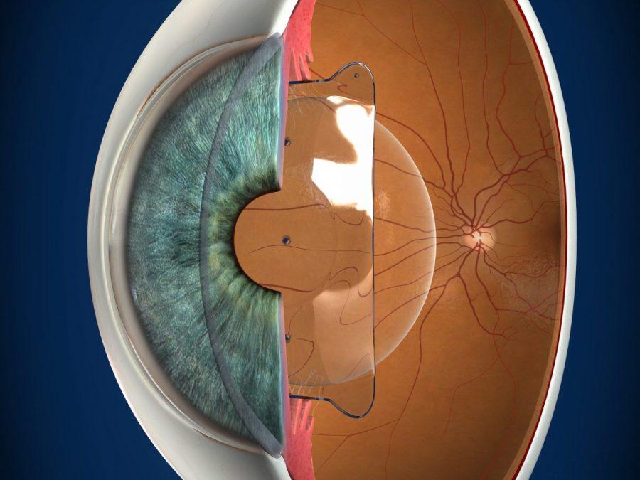 Lentes ICL para el tratamiento de la miopía